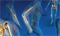 Orthopedic image